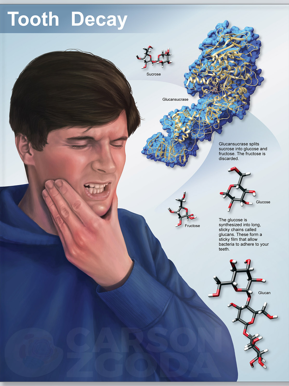 An illustration of a man in agonizing pain from tooth decay.