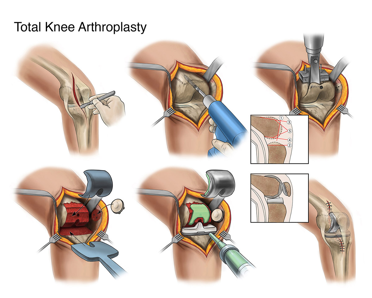 An illustration of a total knee arthoplasty.