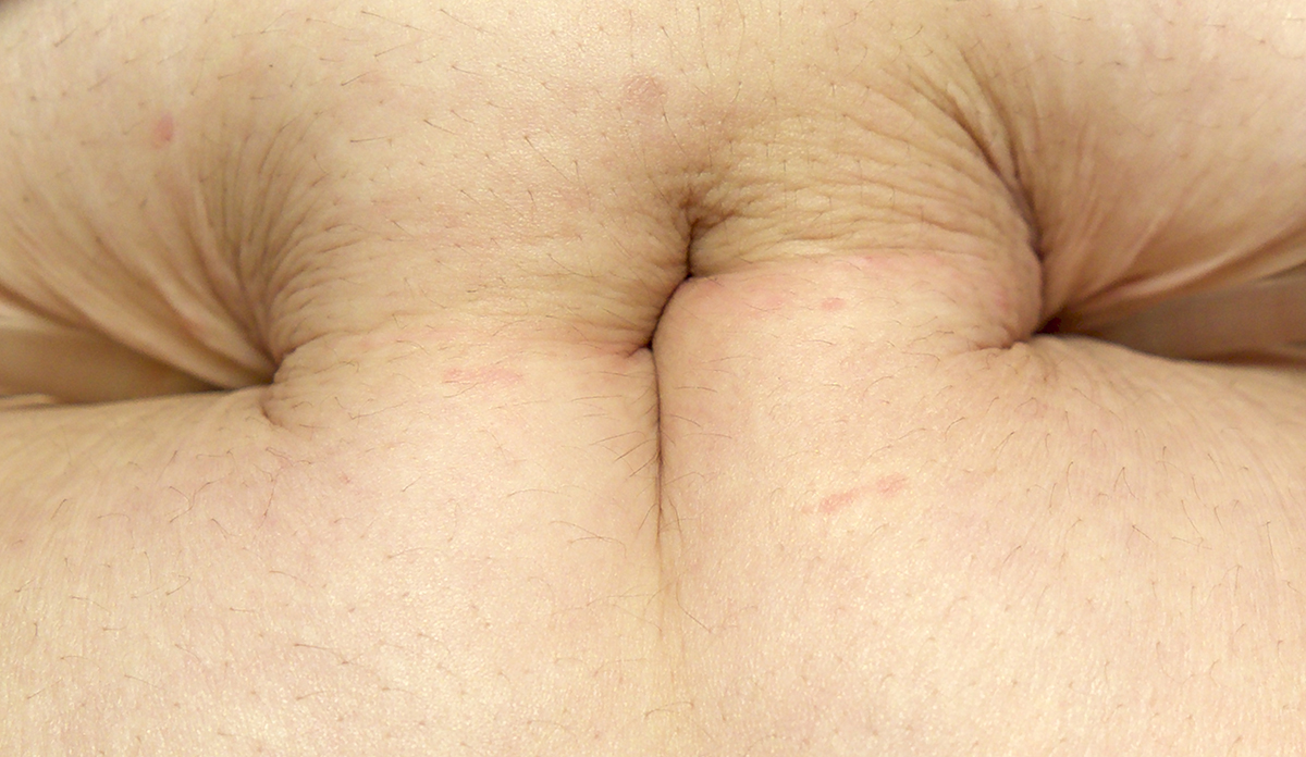 A detailed photo of someone's skin.