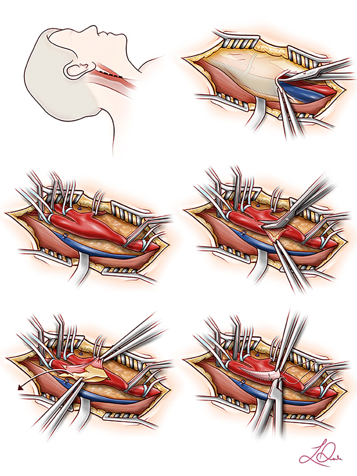 An illustration of a surgery.