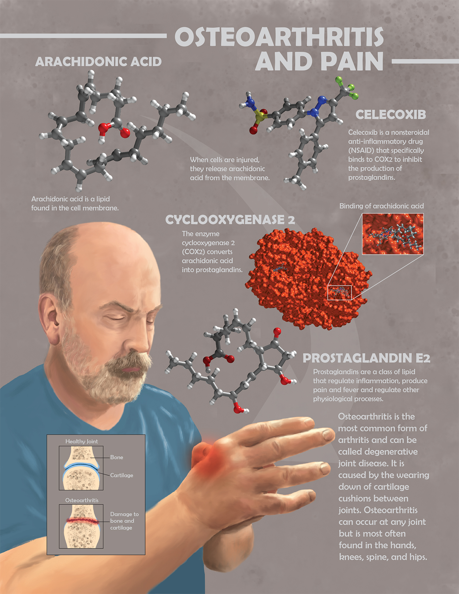An illustration explaining osteoarthritis and pain.