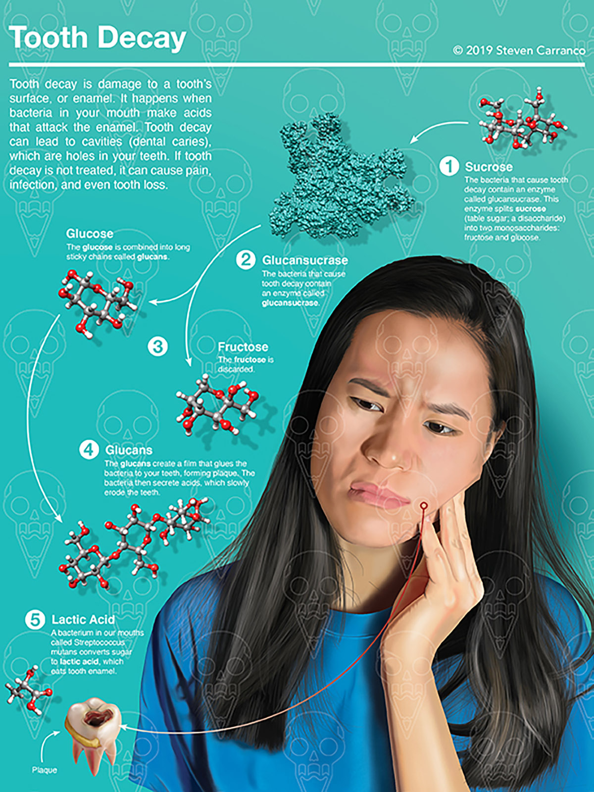 A woman in discomfort from tooth decay.