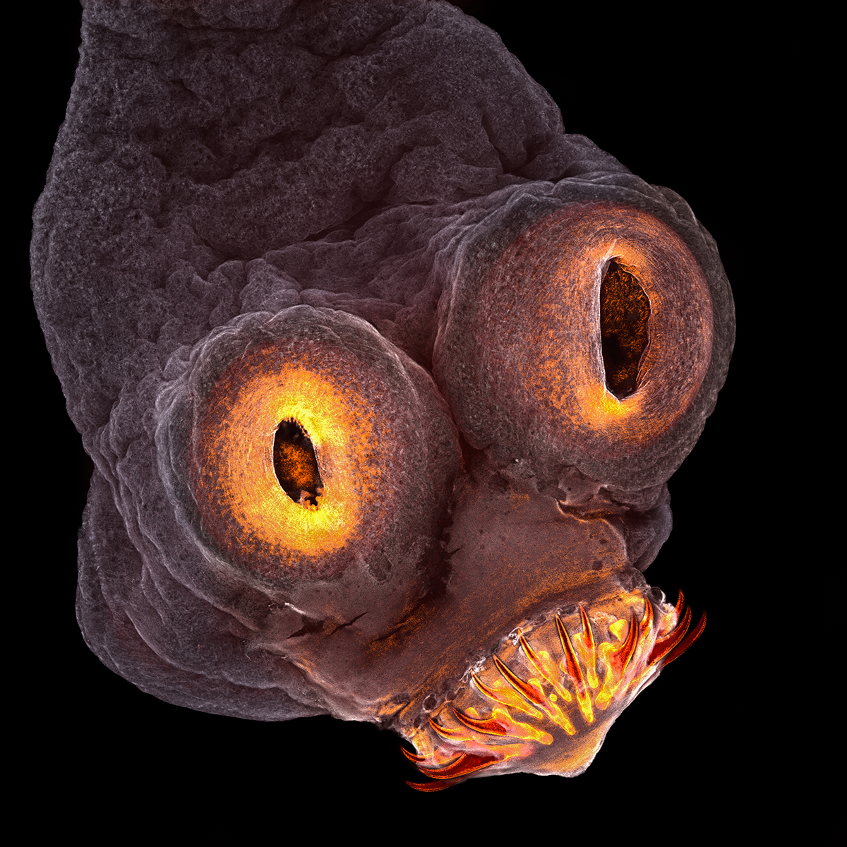 A detailed photomicrograph of a tapeworm.