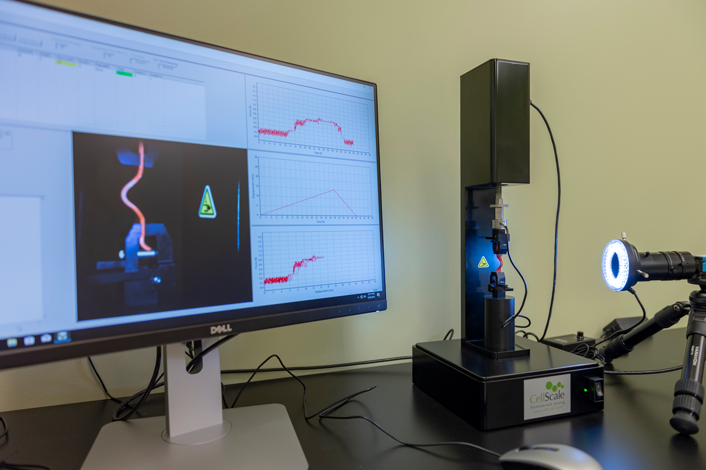 Biomedical device and computer monitor displaying data and graphs