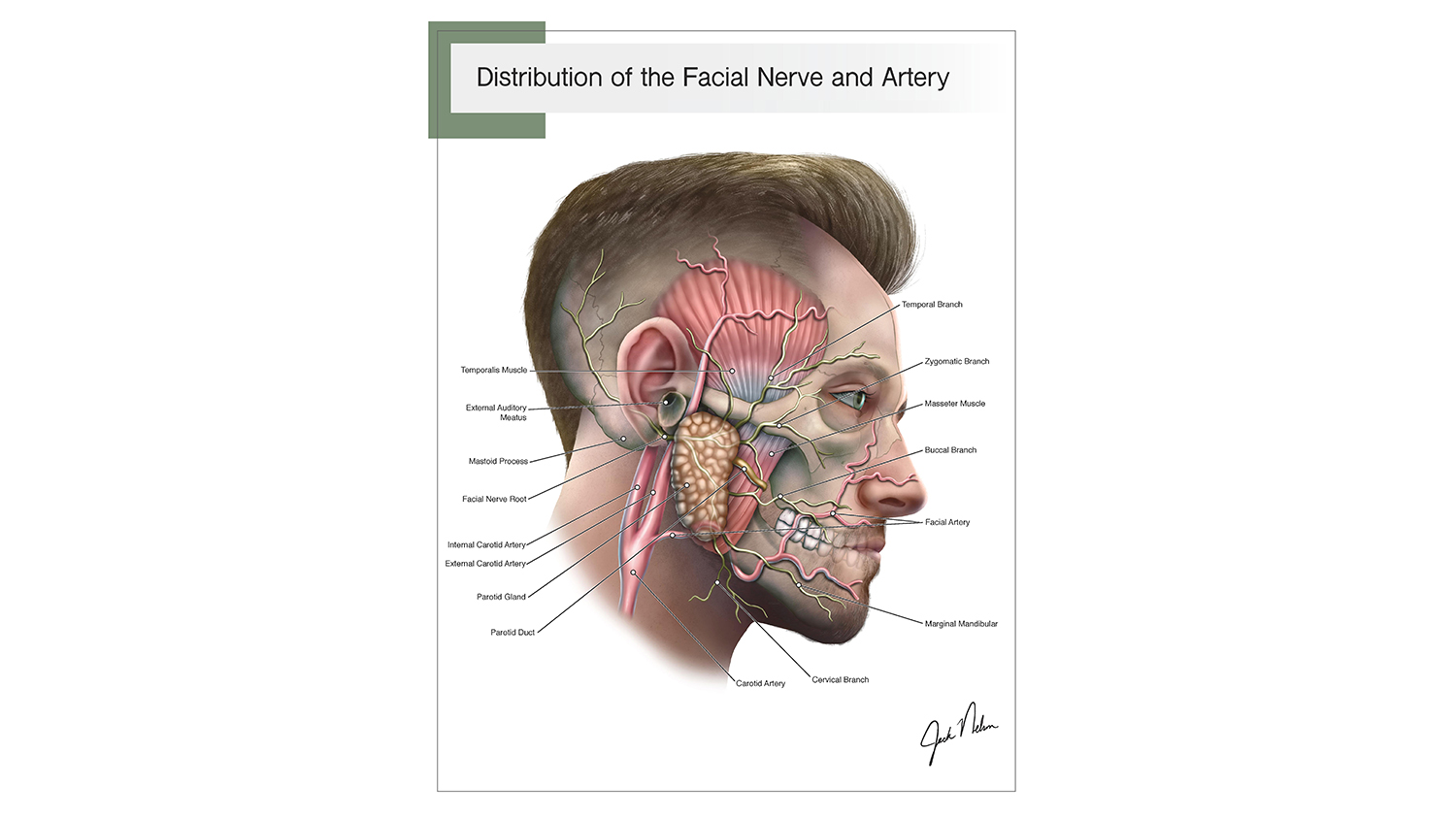 An illustration of facial nerves