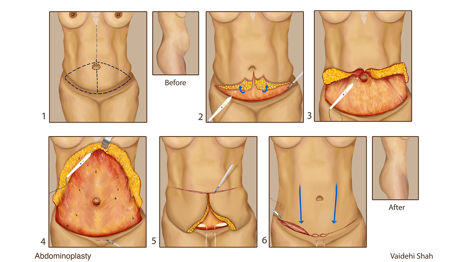 An illustration of an abdominoplasty